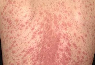 Rash Identification Just Healthnet