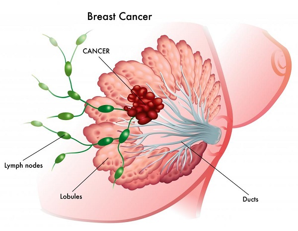 Treatment for Breast Cancer During Pregnancy