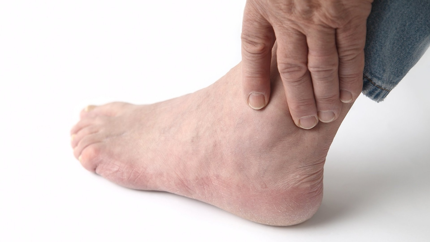 Foods That Can Cause Gout Flare Ups
