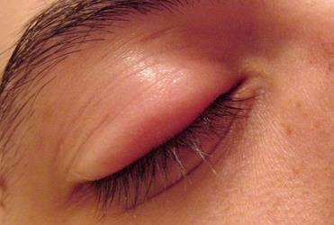Rash All Over Body and Swollen Eyes: Causes and Remedies